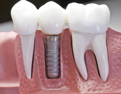 implantes dentales en manresa